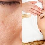 Top 5 Best Ways to Treat Acne Scars