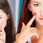 Best Ways to Shrink Large Pores Fast