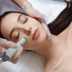 How to do a 5 Step DIY Microdermabrasion at Home